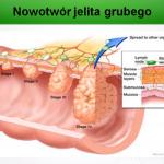 Nowotwór – wpływ odżywiania na powstawanie i leczenie raka